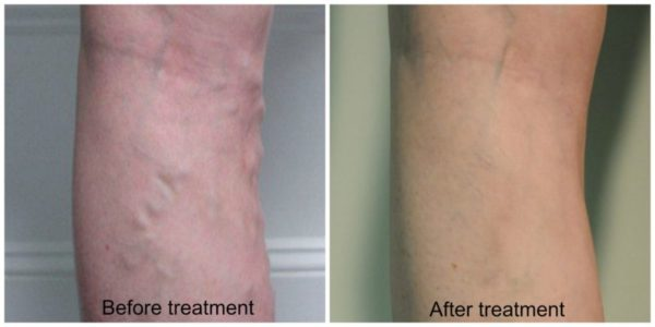 Before/after varicose veins