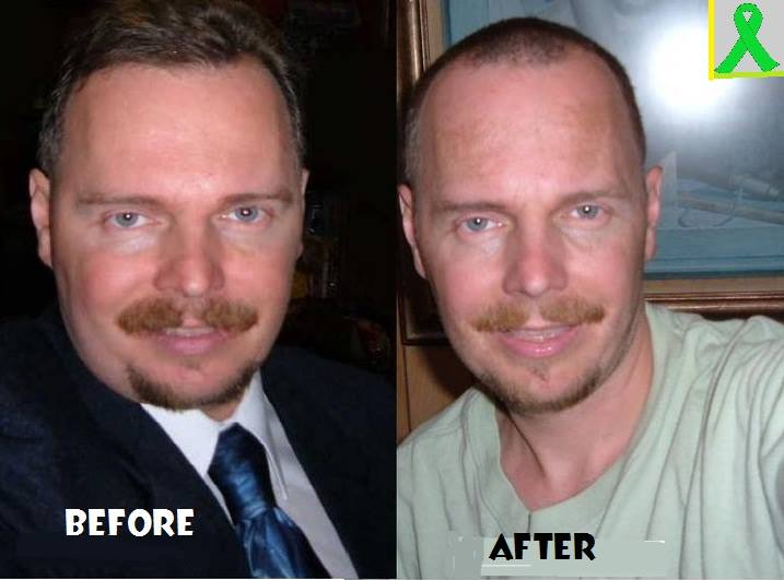 Michael Anderson, who had Lyme Disease, before and after picture