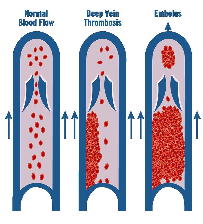 Image of thrombosis