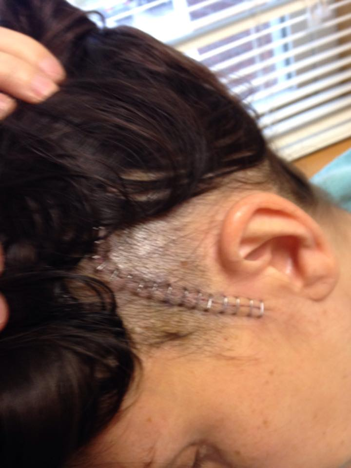 Michelle shows staples