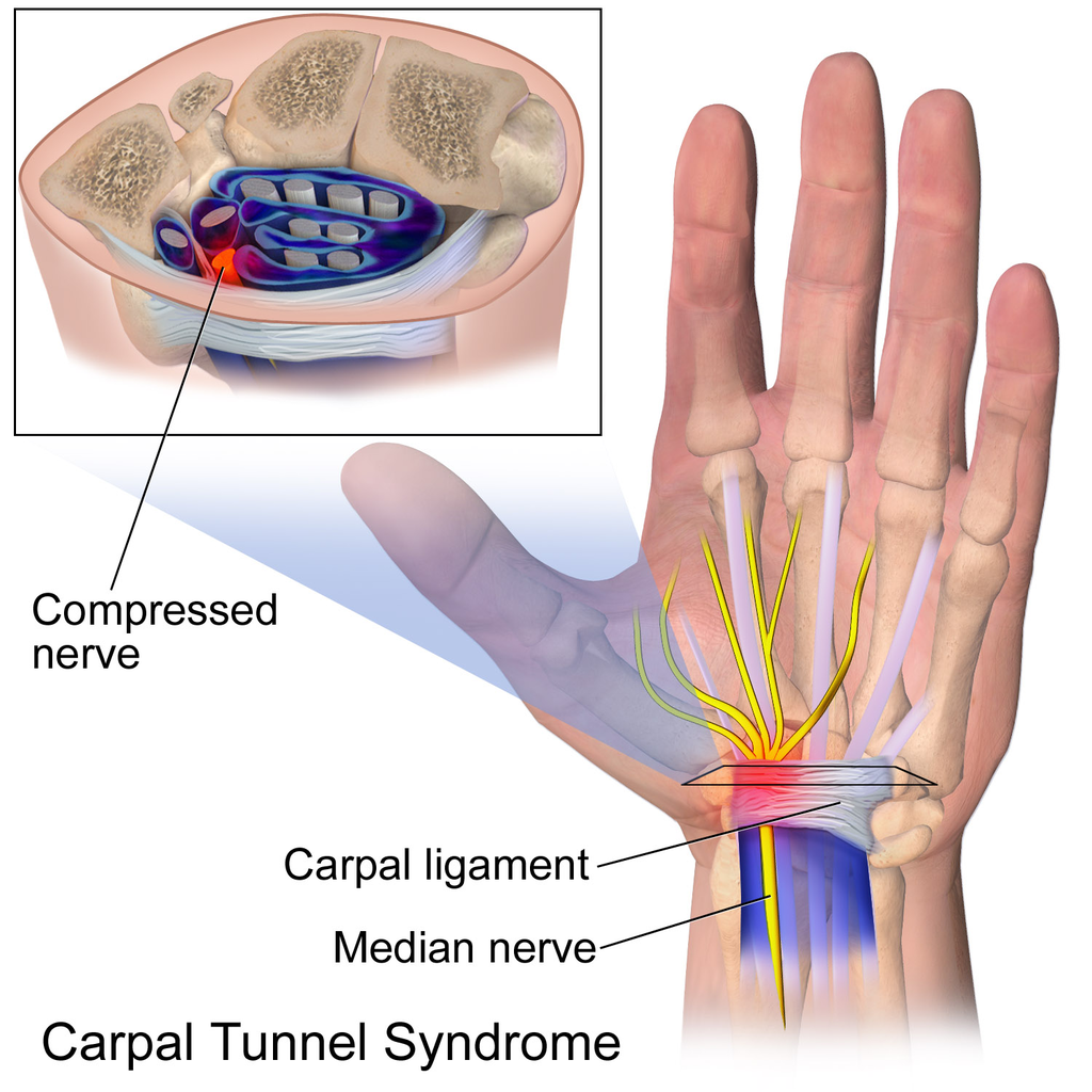 What Causes Carpal Tunnel Syndrome Catching Health With Diane Atwood
