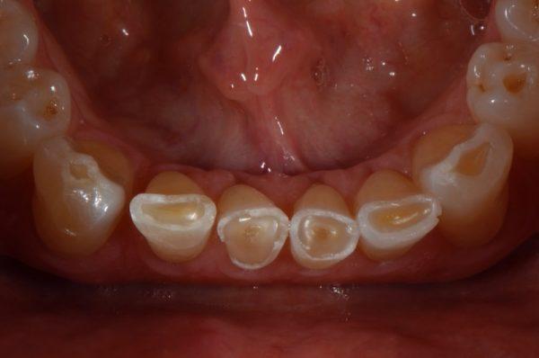 Teeth grinding damage