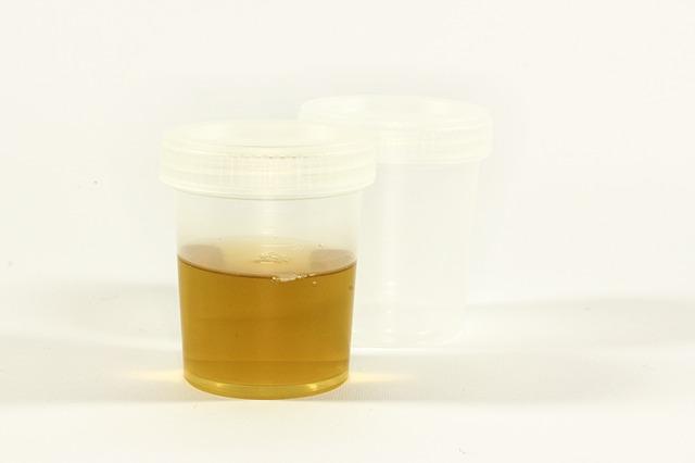 Aceton Im Urin Bei Kindern