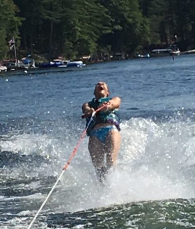 Luanne Cameron on water skis/hyperparathyroid