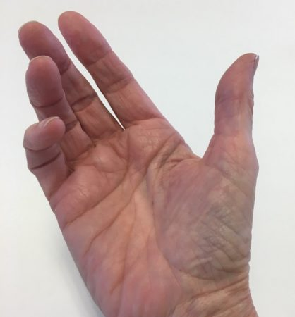 Dianes thumb
