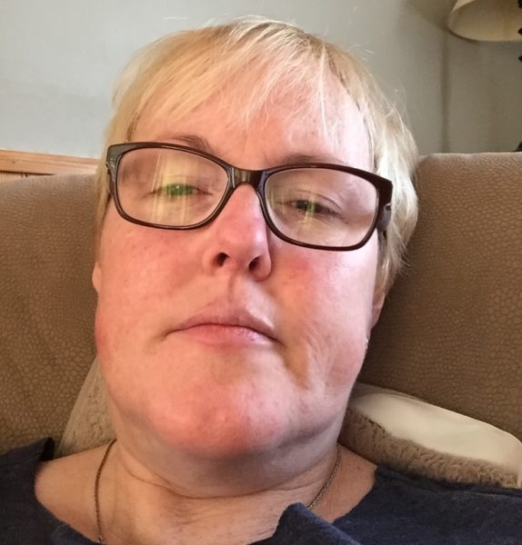 Dawn DeBois/LEMS treatment/autoimmune disease