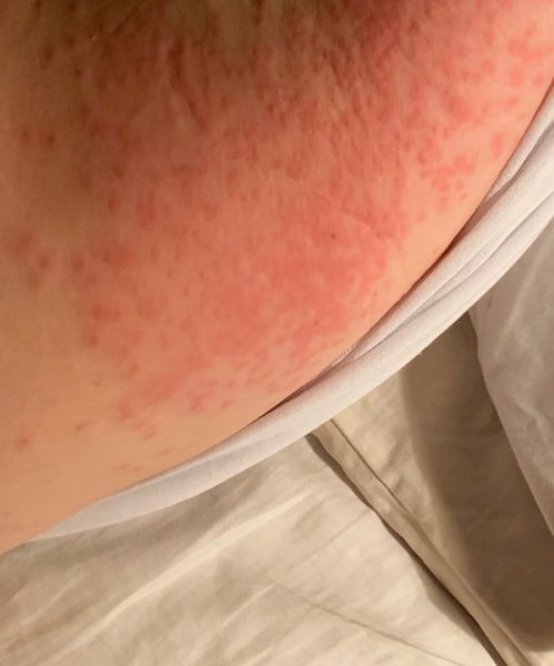 Soothing a browntail moth caterpillar rash | Catching Health