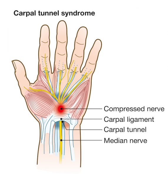 Got a tingling sensation in your thumb and several fingers? You might have carpal tunnel syndrome. Learn more.