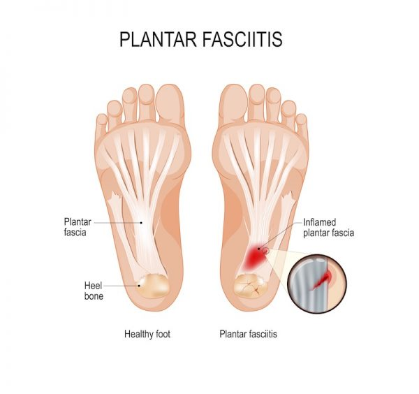 Illustration of plantar fasciitis