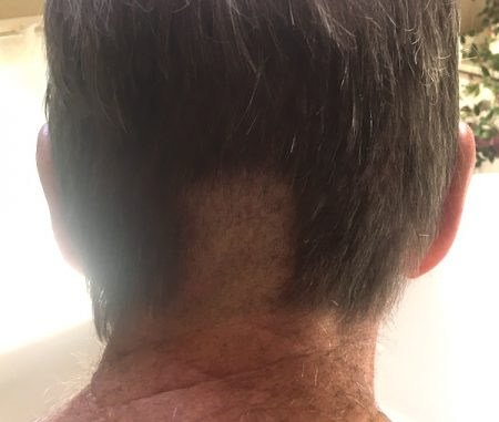 The shaved strip on my husband's head